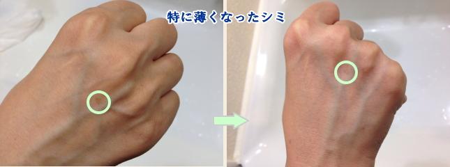 手のシミBefor→After