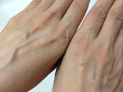 手のシミ両手比較