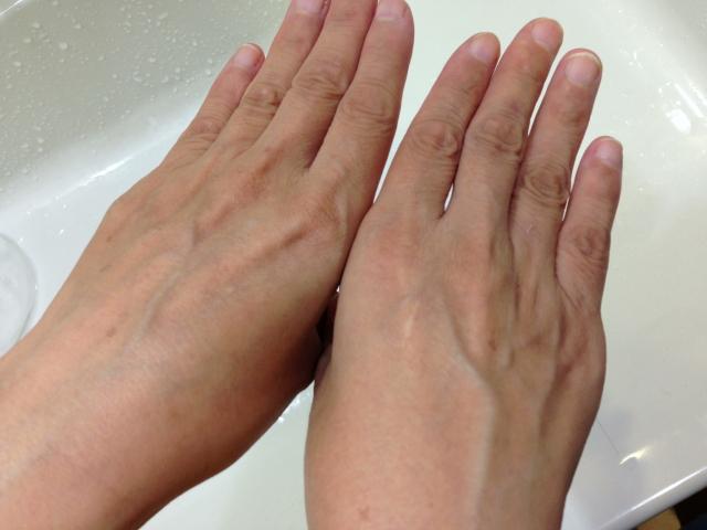 手のシミ比較